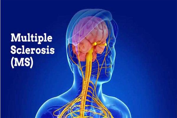 بیماری ام اس(Multiple Scleyosis )