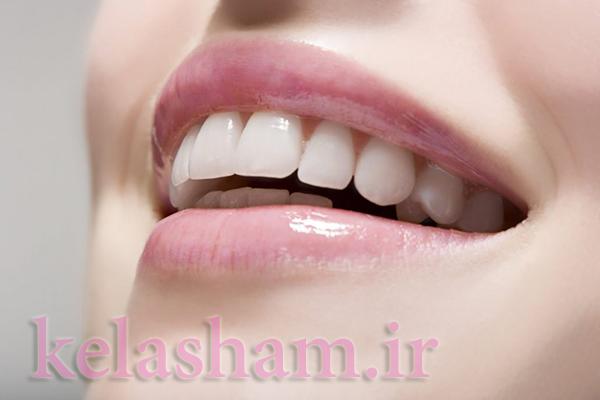 راهکارهایی مفید برای مراقبت و داشتن دندان هایی سالم وزیبا